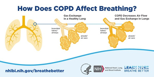 How does COPD affect breathing, copd treatments, how is copd diagnosed, what causes copd, what are the 4 stages of copd, is copd contagious, what is copd, copd pathophysiology, types of copd, Chronic obstructive pulmonary disease (COPD),